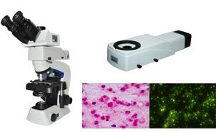 Tuberculosis sputum slide diagnostic solution of fluorescence microscope