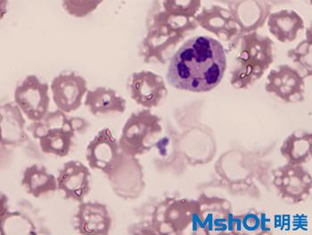 1血液中的白细胞观察的重要工具—广州明美自主研发的显微镜相机MD50.jpg