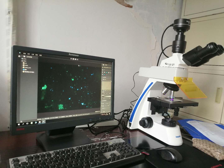 Immufluorescence_microscope_diagnosis.jpg